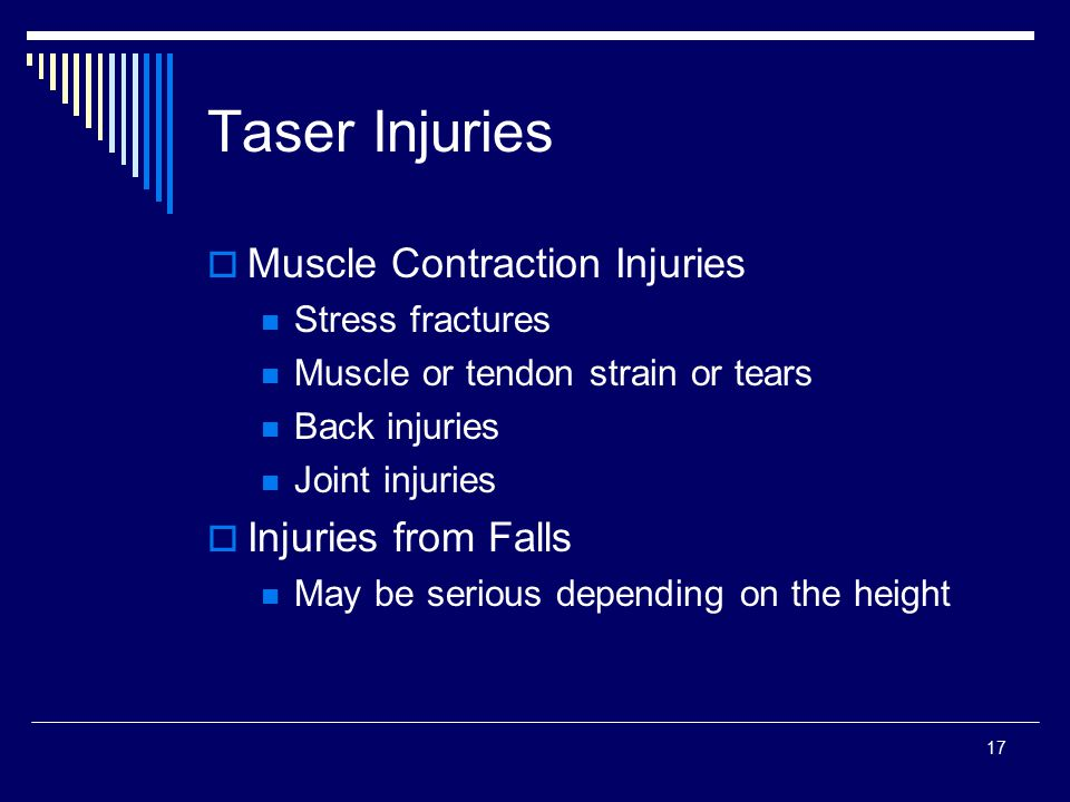 Taser Injuries Muscle Contraction Injuries Injuries from Falls