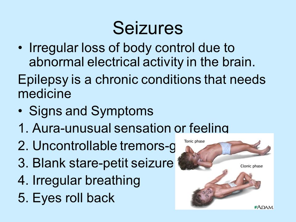 Seizures Irregular loss of body control due to abnormal electrical activity in the brain. Epilepsy is a chronic conditions that needs medicine.