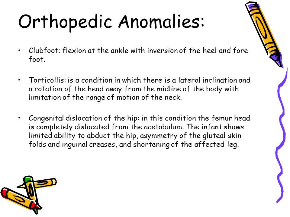 Orthopedic Anomalies:
