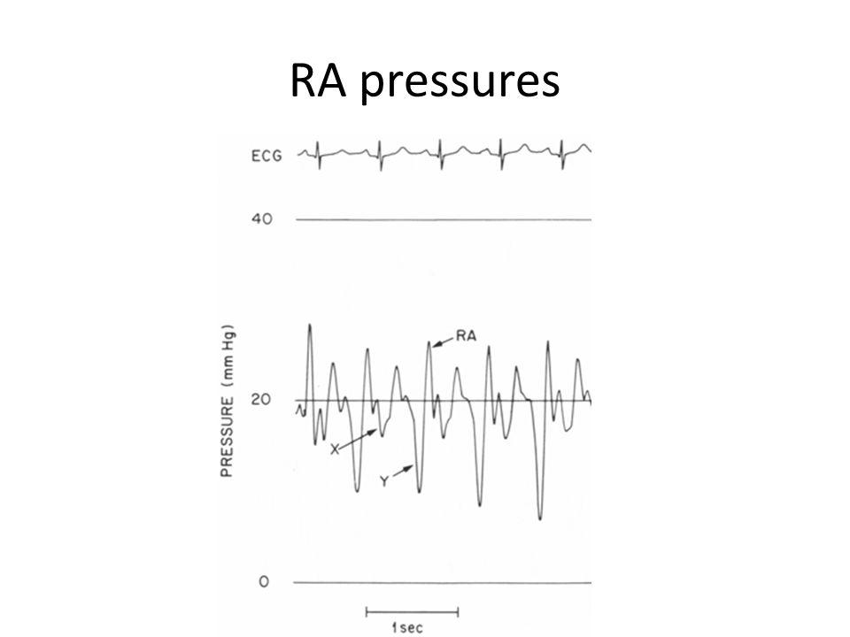 RA pressures