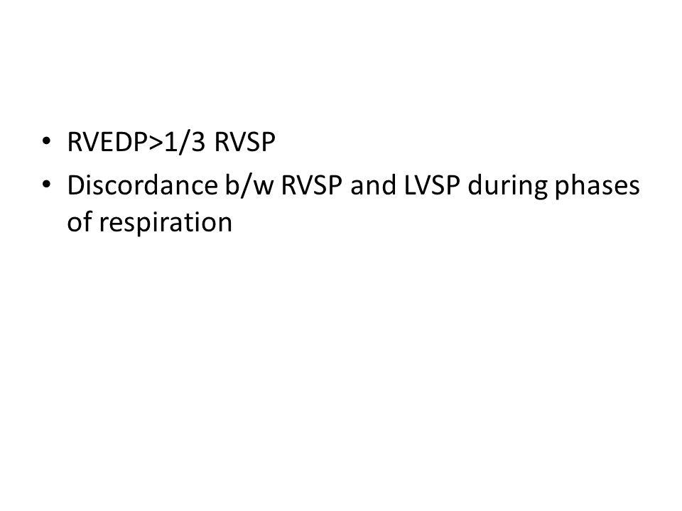 RVEDP>1/3 RVSP Discordance b/w RVSP and LVSP during phases of respiration