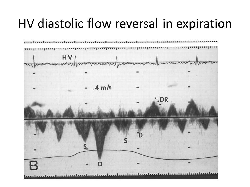 HV diastolic flow reversal in expiration
