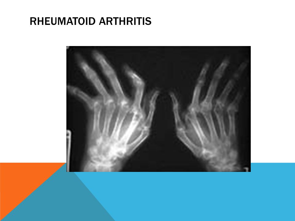 Rheumatoid Arthritis Pg 1836-47