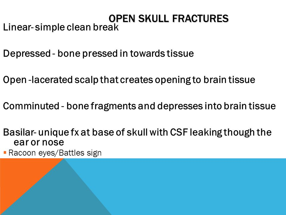 Open Skull Fractures Linear- simple clean break