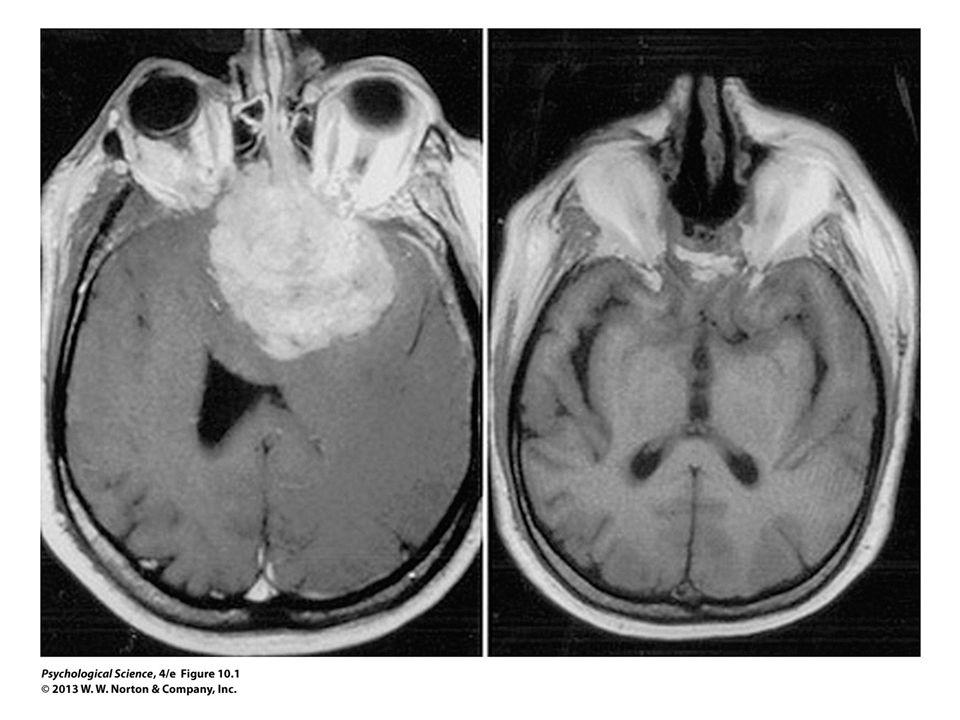 FIGURE 10.1 Tumor in the Prefrontal Cortex