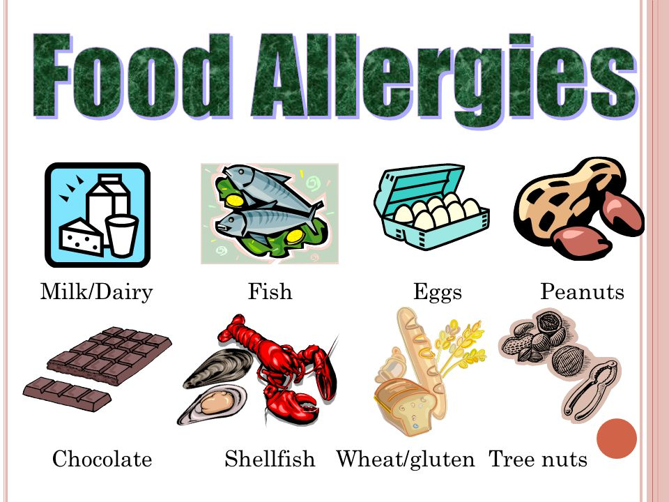 Food Allergies Milk/Dairy Fish Eggs Peanuts Chocolate Shellfish