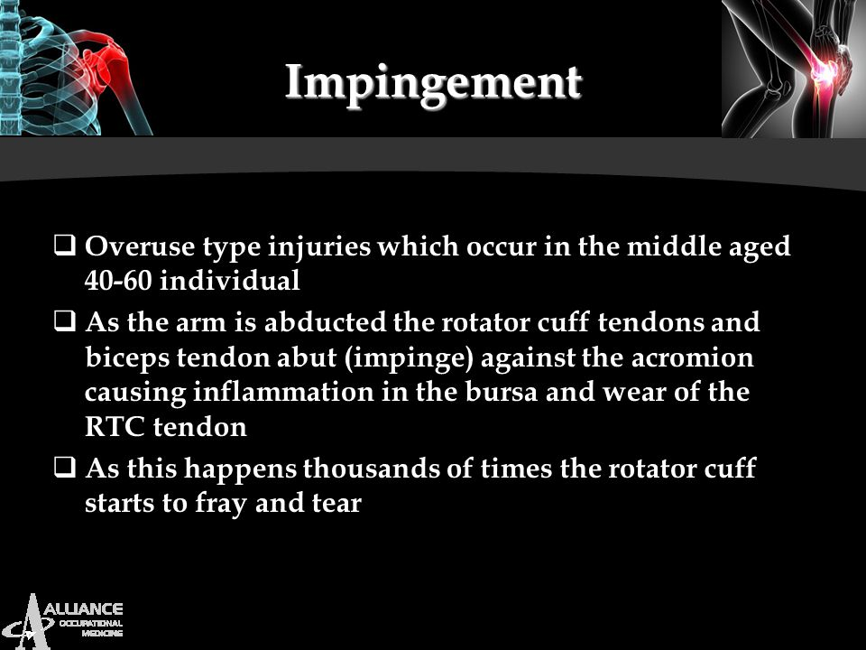 Impingement Overuse type injuries which occur in the middle aged 40-60 individual.
