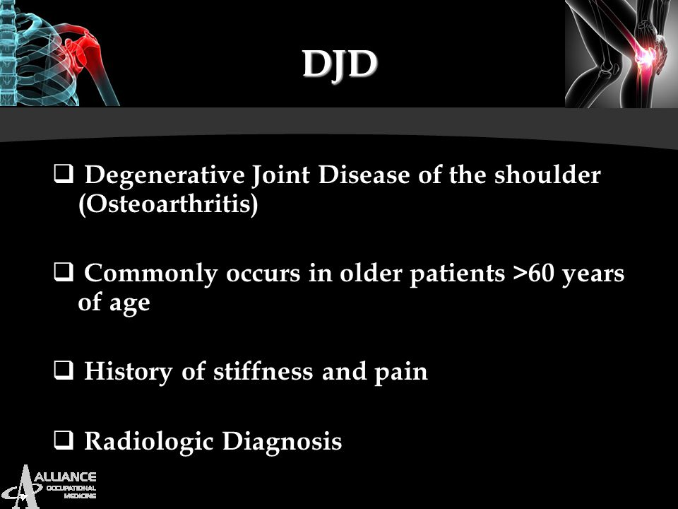 DJD Degenerative Joint Disease of the shoulder (Osteoarthritis)