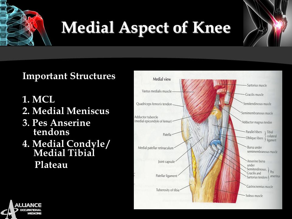 Medial Aspect of Knee Important Structures 1. MCL 2. Medial Meniscus