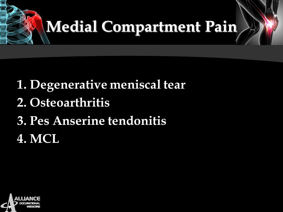 Medial Compartment Pain