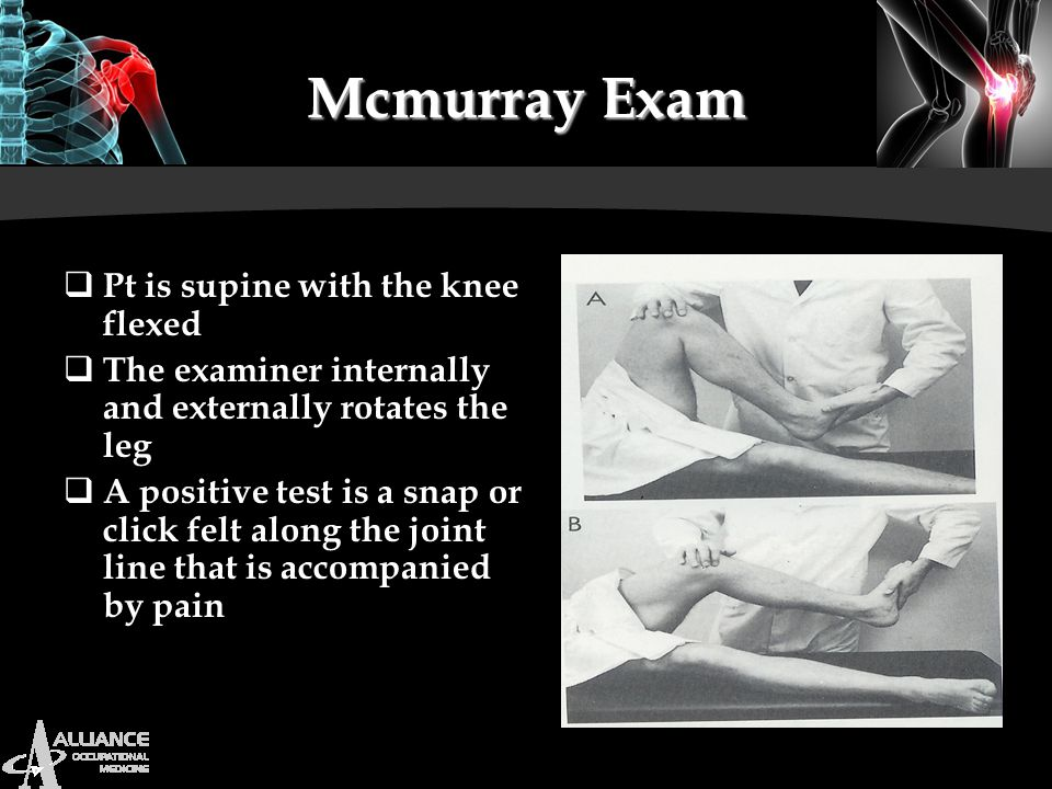 Mcmurray Exam Pt is supine with the knee flexed