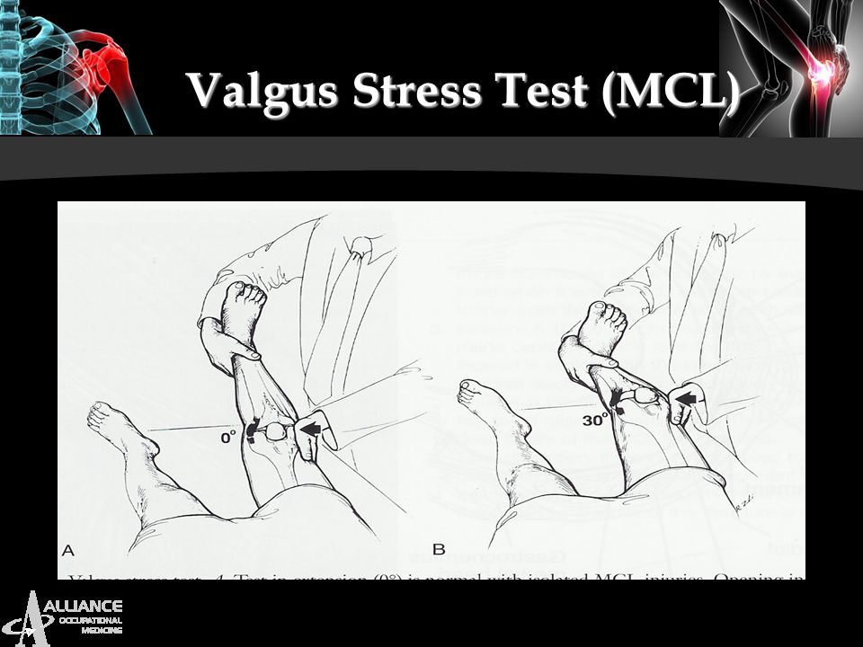Valgus Stress Test (MCL)