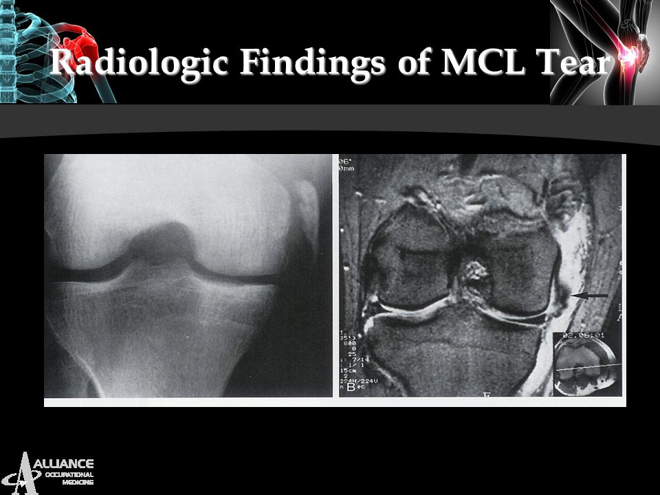 Radiologic Findings of MCL Tear