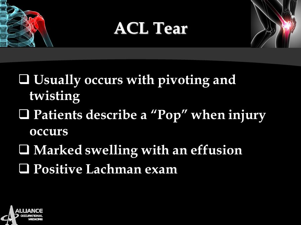 ACL Tear Usually occurs with pivoting and twisting