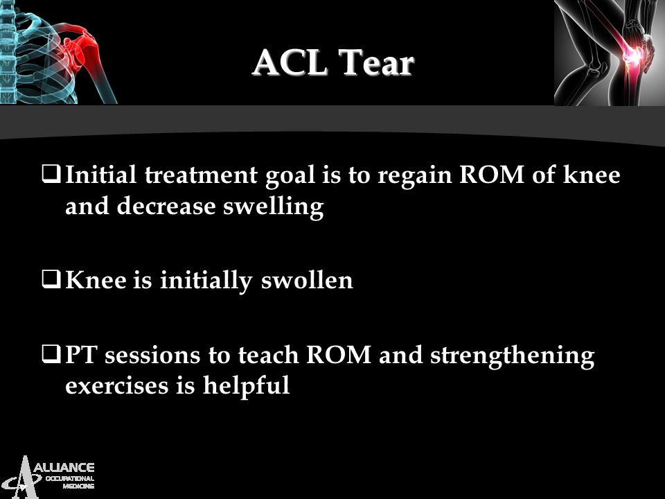 ACL Tear Initial treatment goal is to regain ROM of knee and decrease swelling. Knee is initially swollen.