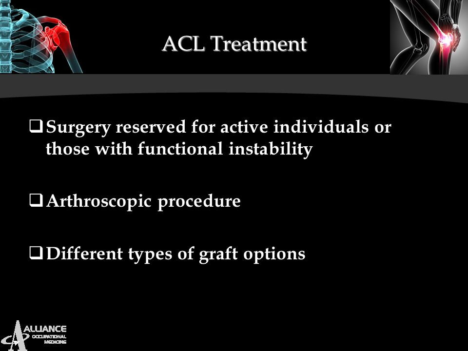ACL Treatment Surgery reserved for active individuals or those with functional instability. Arthroscopic procedure.