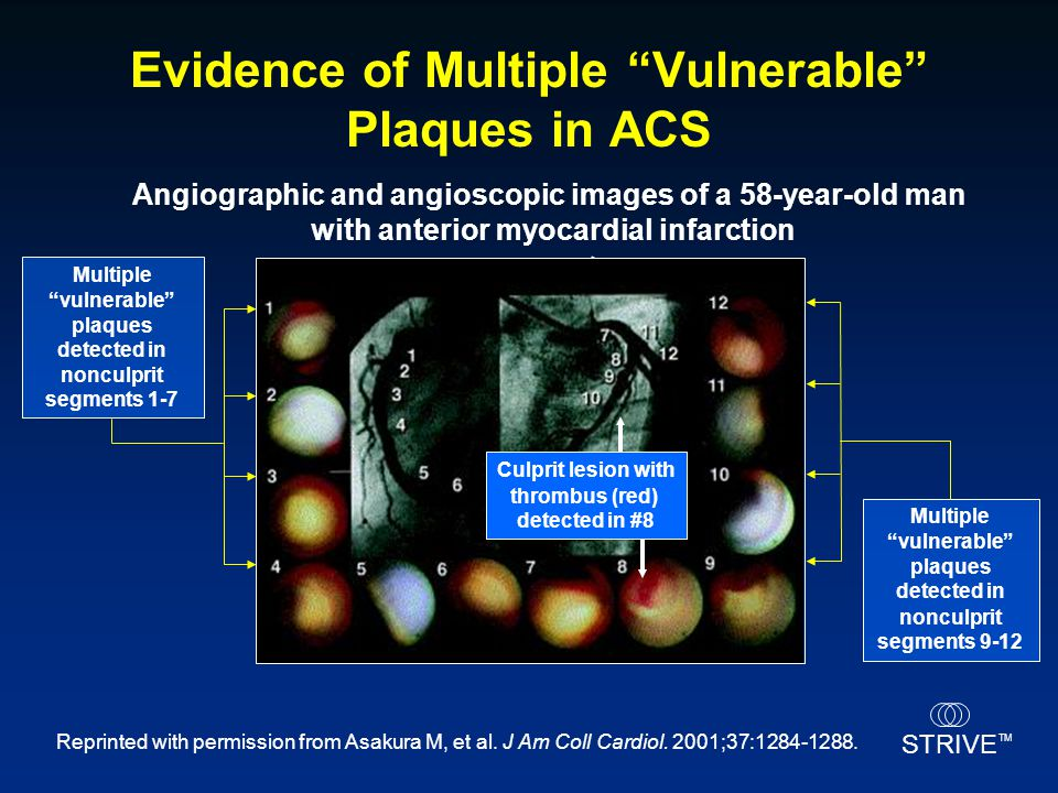 Evidence of Multiple Vulnerable Plaques in ACS