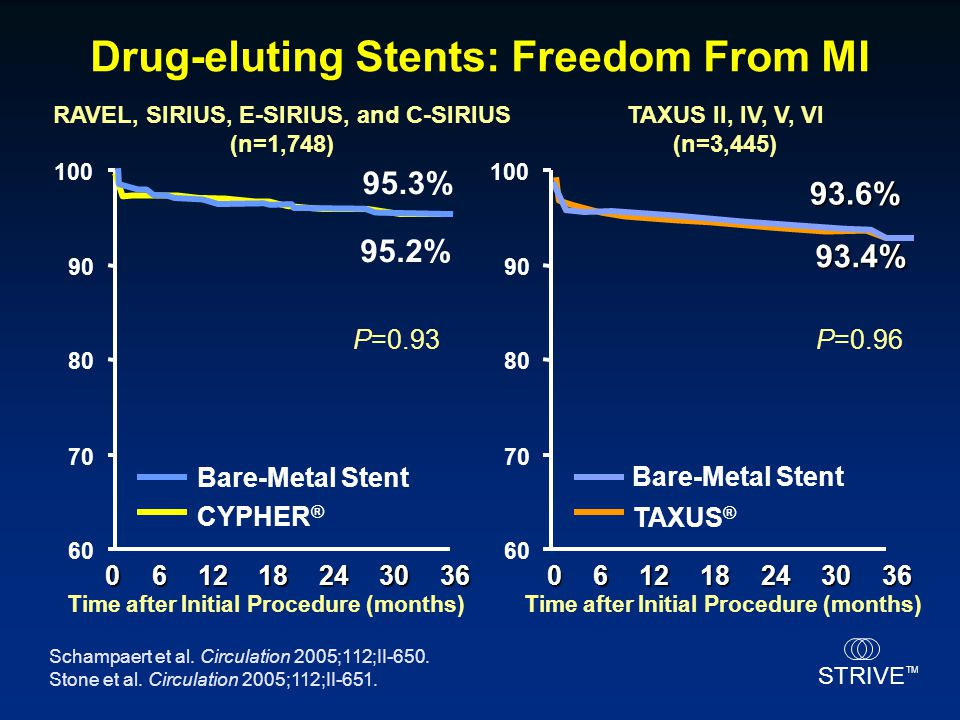 Drug-eluting Stents: Freedom From MI