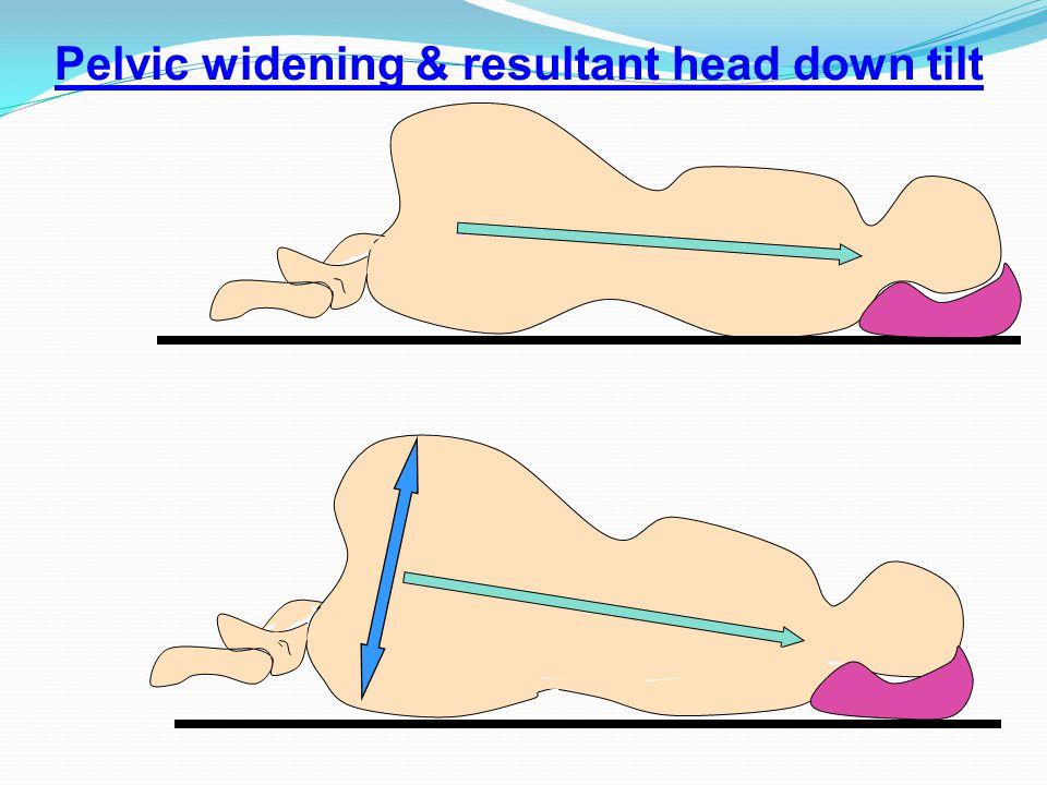 Pelvic widening & resultant head down tilt