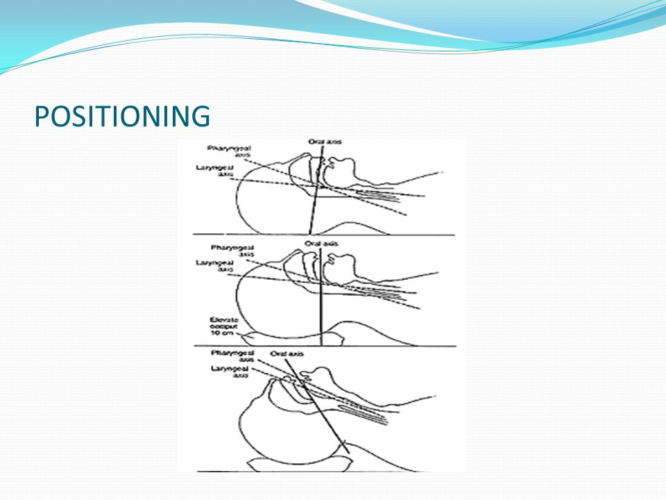 POSITIONING Correct positioning to maximise the chance of succesful intubation
