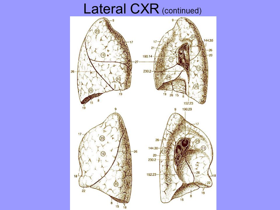 Lateral CXR (continued)