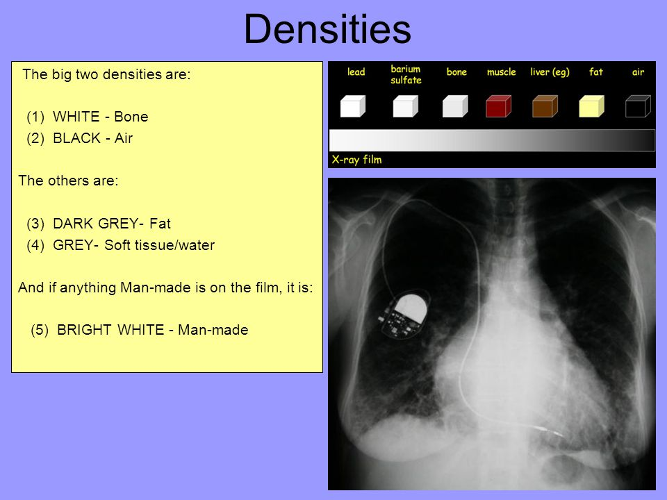 Densities The big two densities are: (1) WHITE - Bone (2) BLACK - Air