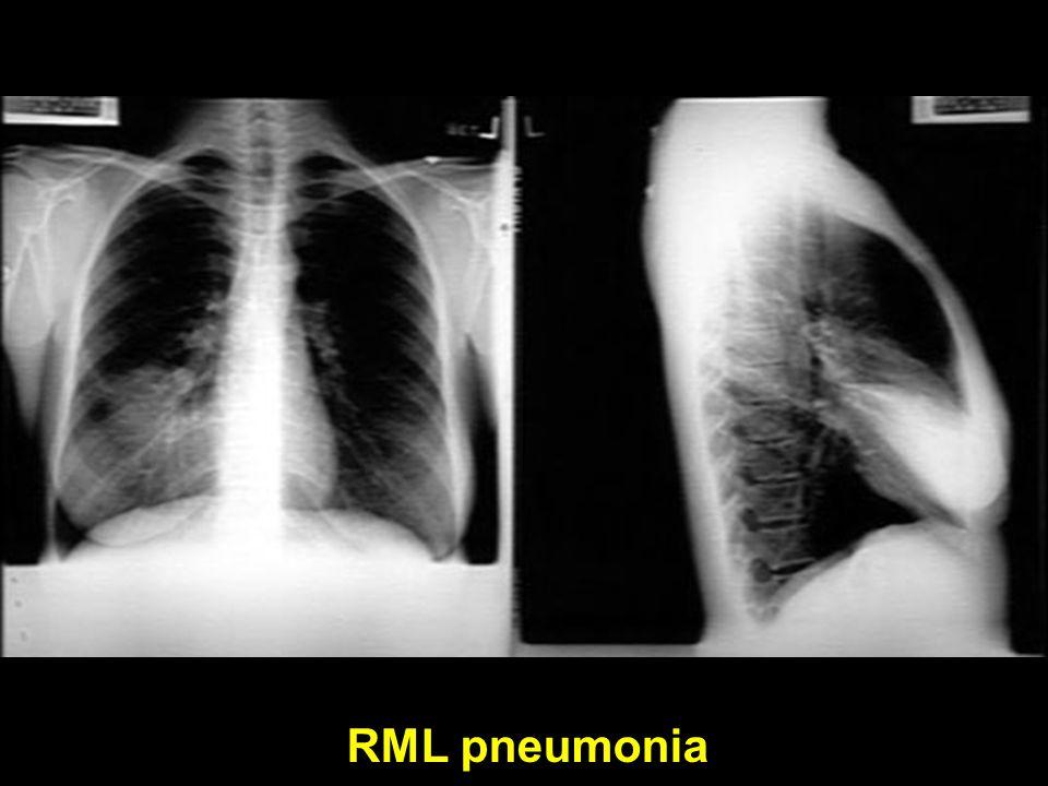 RML pneumonia