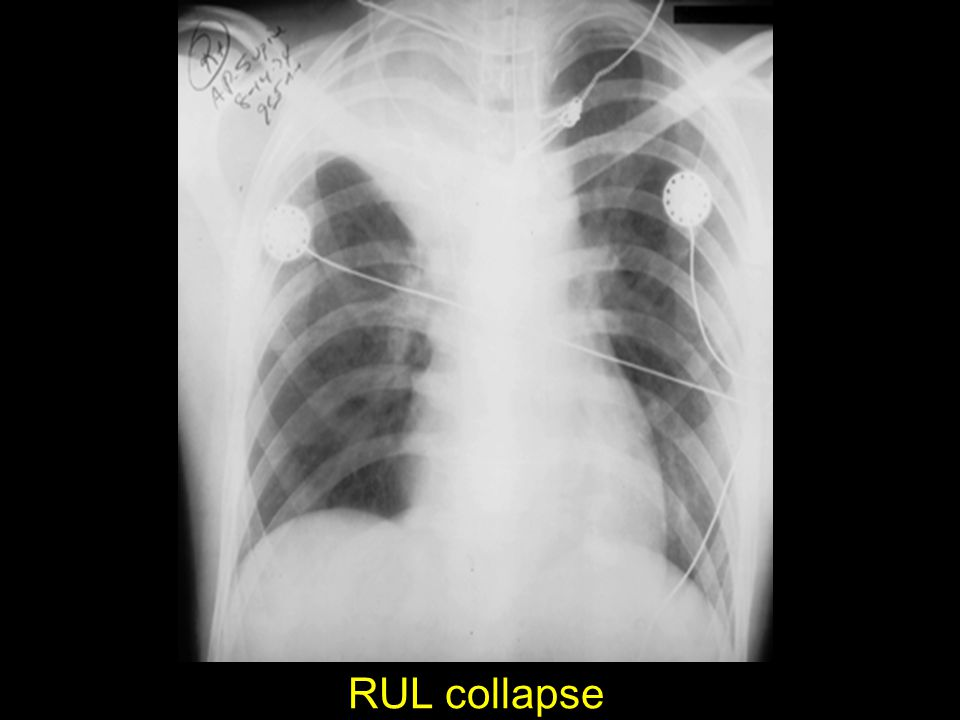 RUL collapse