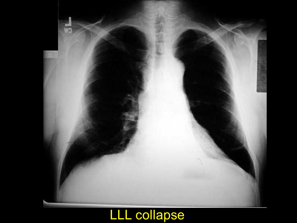 LLL collapse