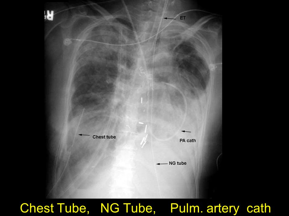 Chest Tube, NG Tube, Pulm. artery cath