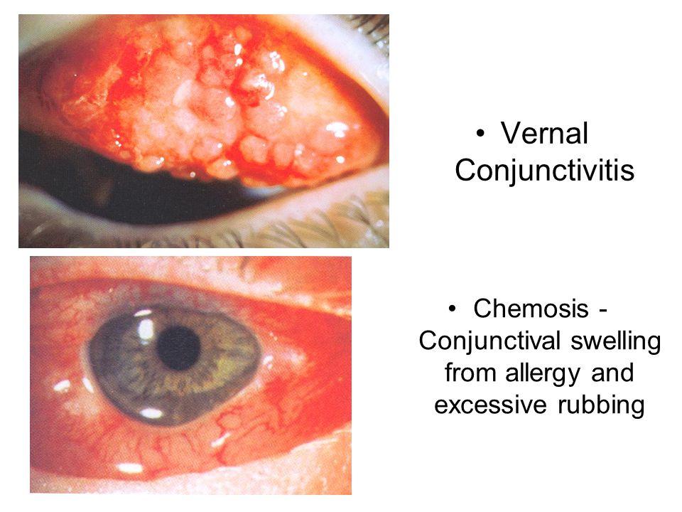 Vernal Conjunctivitis