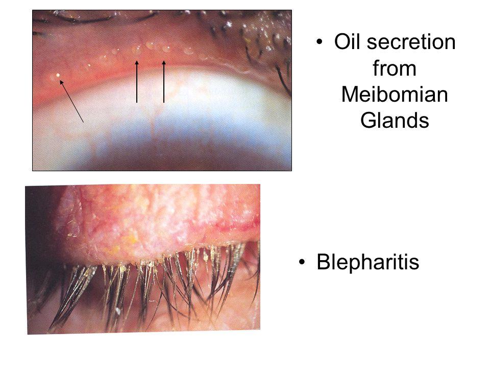 Oil secretion from Meibomian Glands