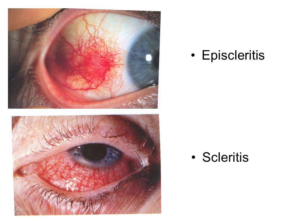 Episcleritis Scleritis Episcleritis