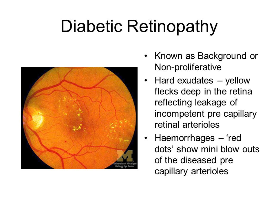 Diabetic Retinopathy Known as Background or Non-proliferative