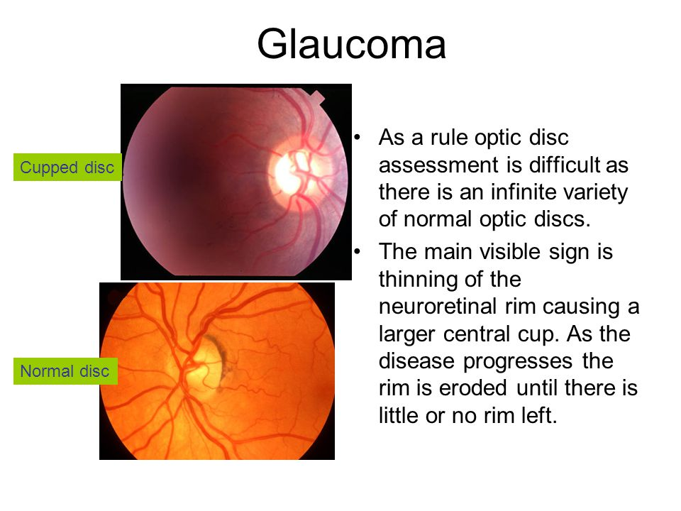 Glaucoma As a rule optic disc assessment is difficult as there is an infinite variety of normal optic discs.