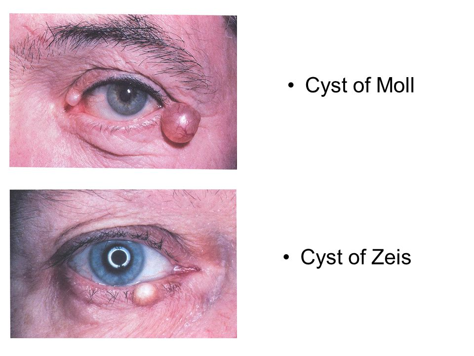 Cyst of Moll Cyst of Zeis Cyst of moll