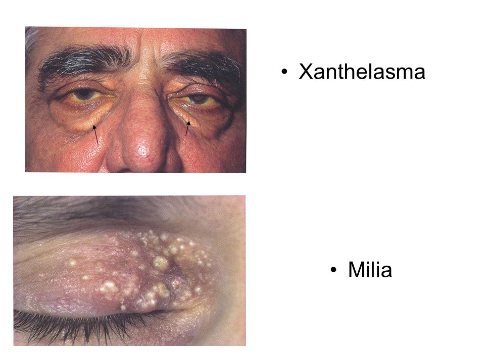 Xanthelasma Milia Xanthelasma Fatty deposits around the eyes