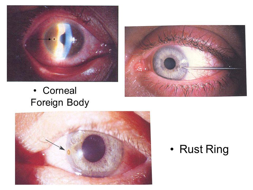 Rust Ring Corneal Foreign Body Corneal FB