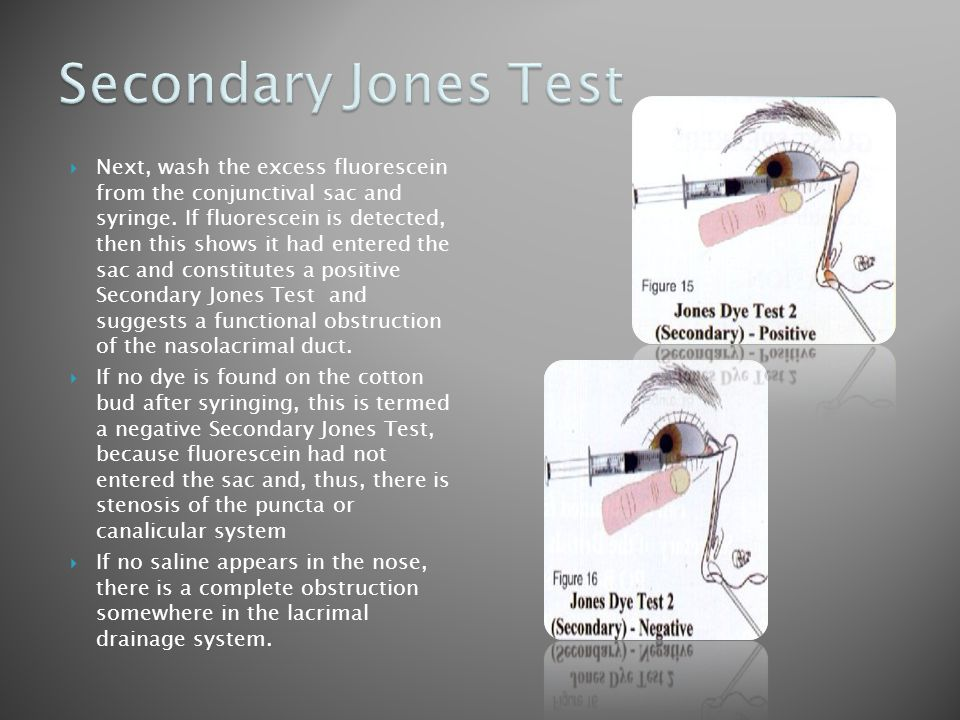 Secondary Jones Test