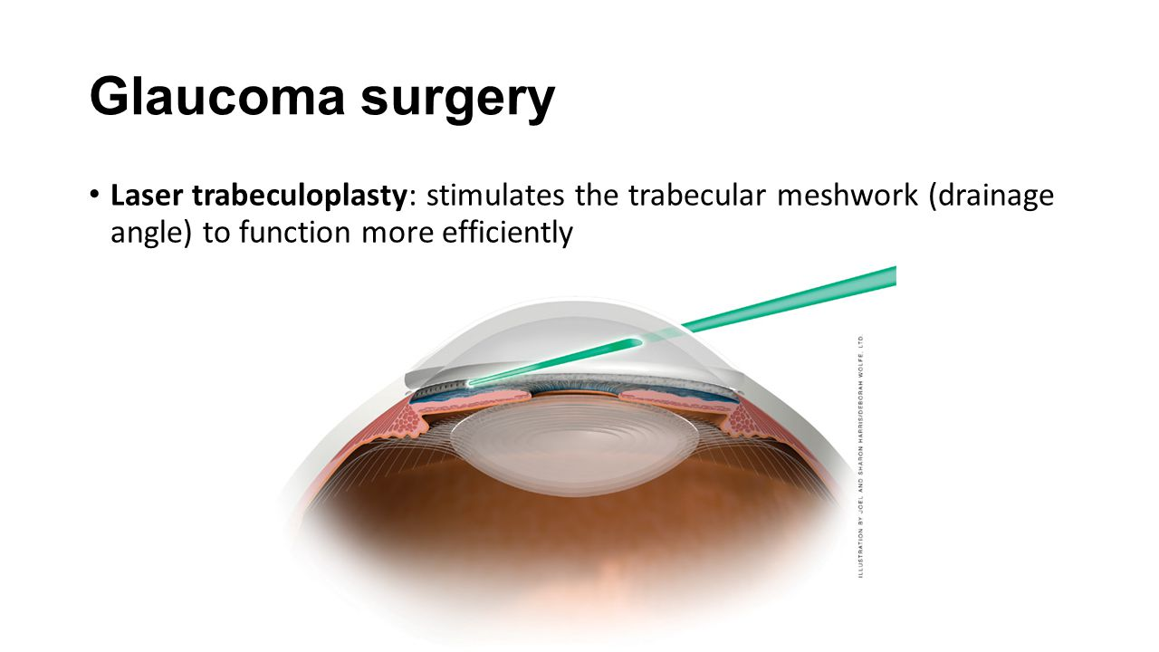 Glaucoma surgery Laser trabeculoplasty: stimulates the trabecular meshwork (drainage angle) to function more efficiently.