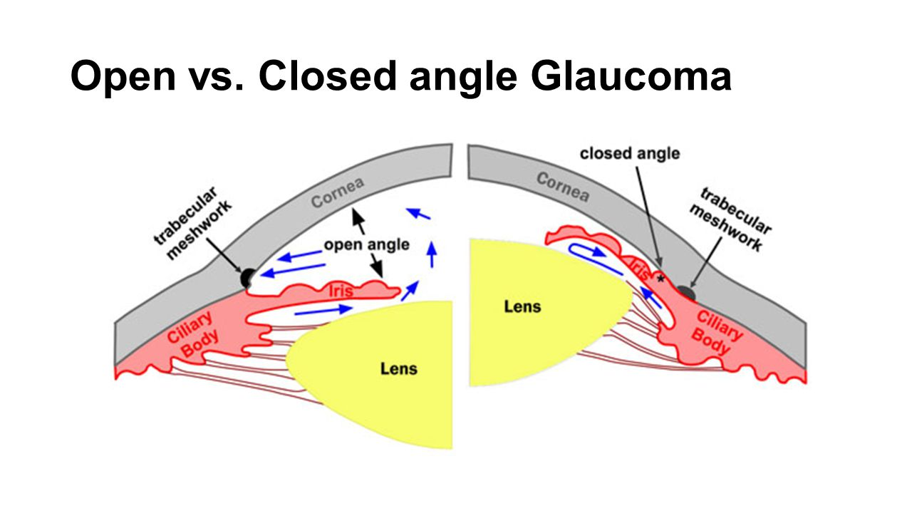 Open vs. Closed angle Glaucoma