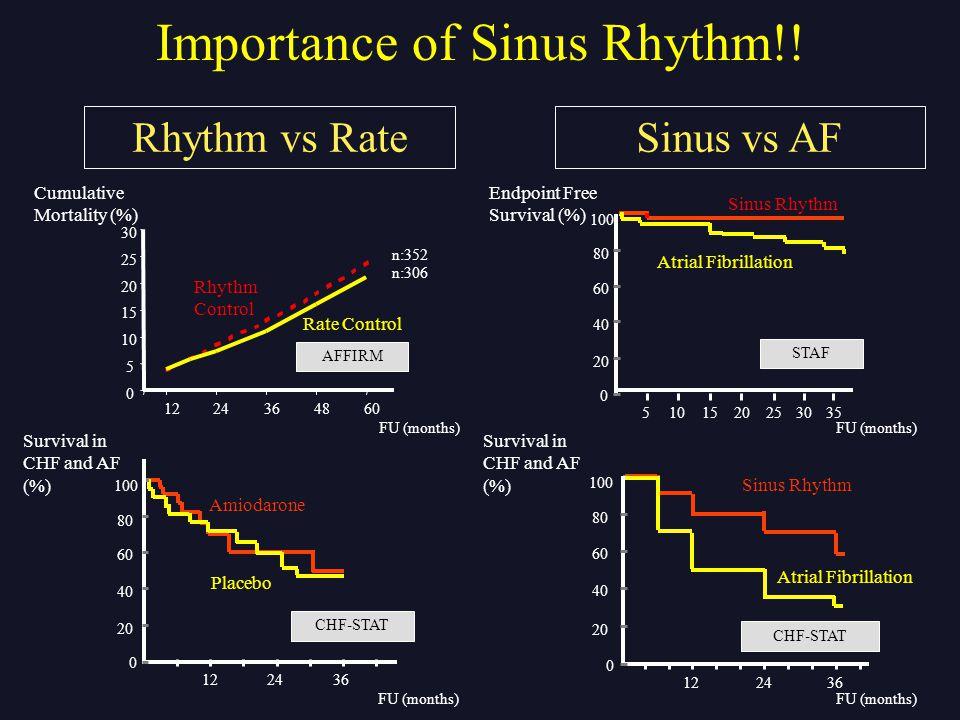 Importance of Sinus Rhythm!!