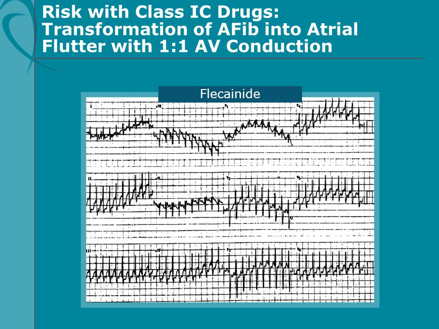 Risk with Class IC Drugs: Transformation of AFib into Atrial Flutter with 1:1 AV Conduction
