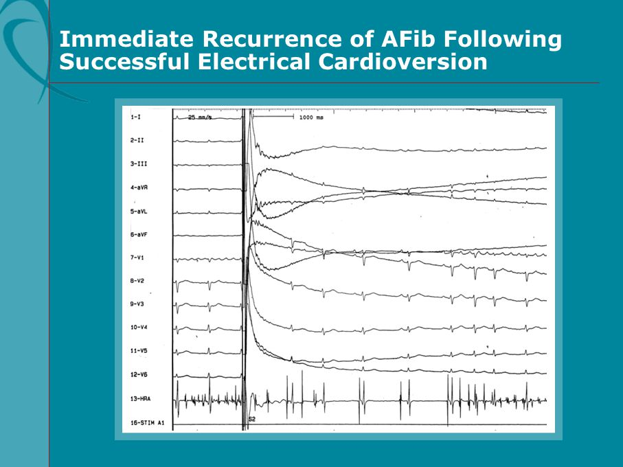Immediate Recurrence of AFib Following Successful Electrical Cardioversion