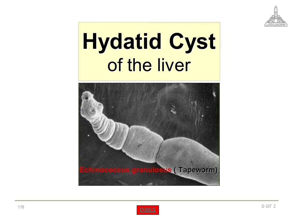 Hydatid Cyst of the liver