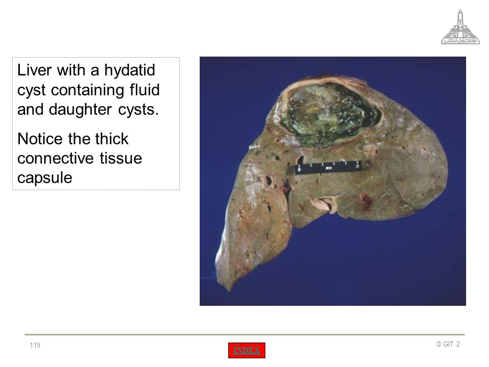 Liver with a hydatid cyst containing fluid and daughter cysts.