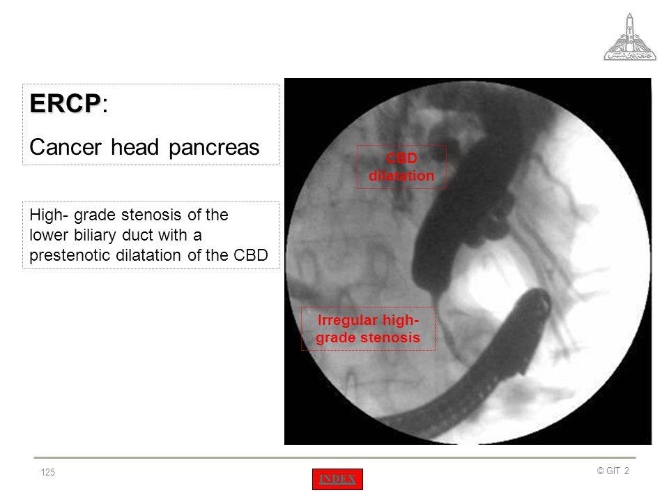 Irregular high- grade stenosis