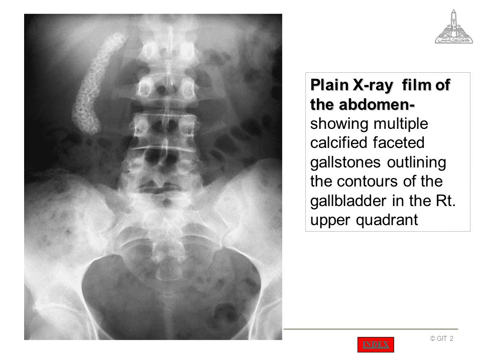 Plain X-ray film of the abdomen- showing multiple calcified faceted gallstones outlining the contours of the gallbladder in the Rt. upper quadrant