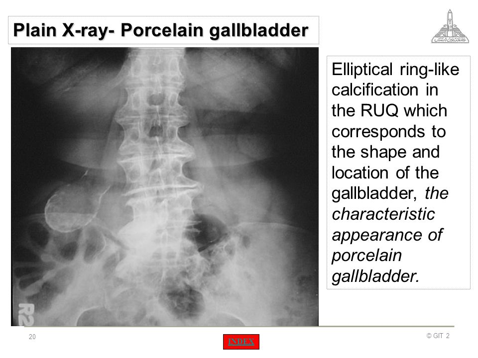 Plain X-ray- Porcelain gallbladder