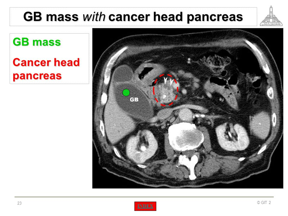 GB mass with cancer head pancreas